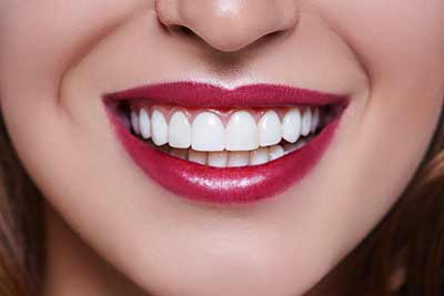 Woman wearing red lipstick smiles showing perfect white teeth