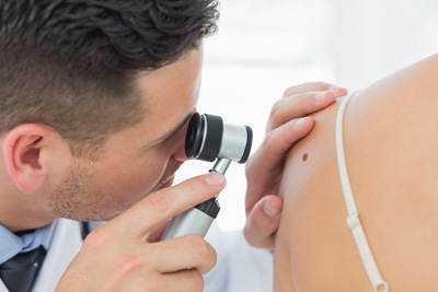 How can practitioners advise patients on skin safety? - Image showing practitioner inspecting a mole